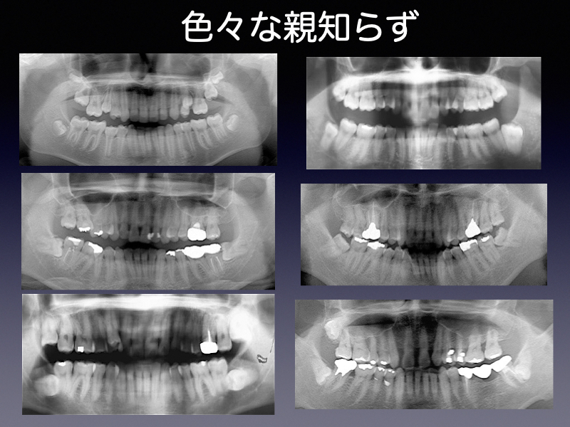 2007港北医学会親知らず.001